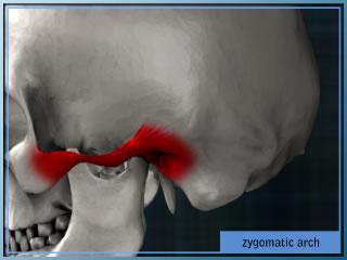 Zygomatic arch augment